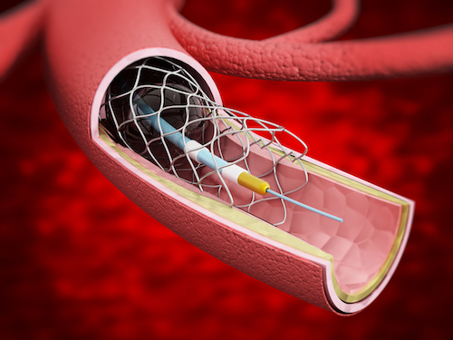vascular-stent